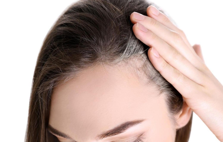 代 30 た が 白髪 増え 【驚愕】30代で白髪だらけで真っ白!原因と対処法は?髪を美しく保つヘアケア方法も! haru journal