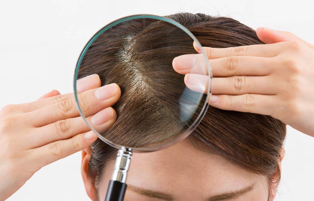 美髪のカギは頭皮や肌の常在菌でした②
