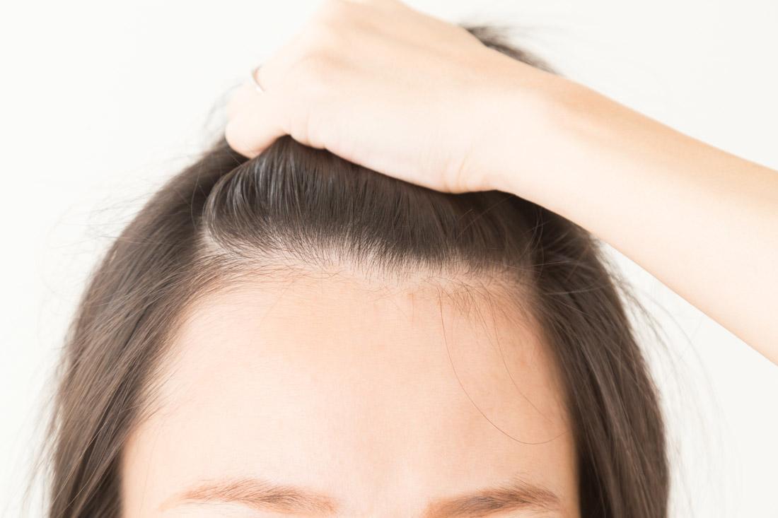 抜け毛を機にする女性